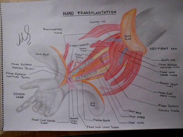 трансплантация рук