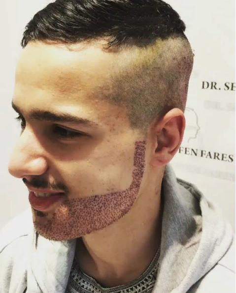 пересадка волос в область бороды