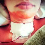 пересадка щитовидной железы