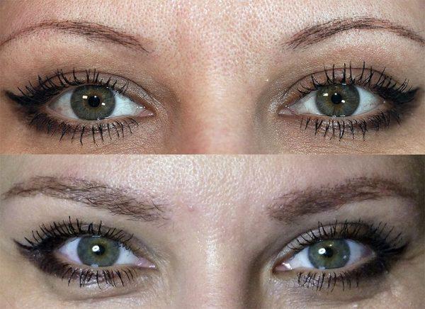трансплантация бровей фото до и после