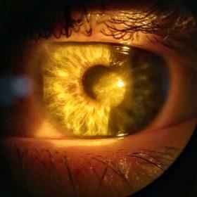 операция по замене роговицы глаза