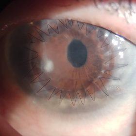 трансплантация роговицы глаза