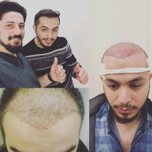Пересадка волос в Казани