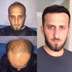 Пересадка волос в Краснодаре