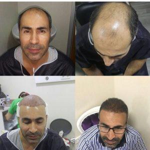 Пересадка волос в Махачкале