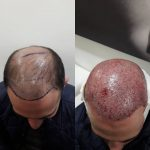 Пересадка волос в Минске