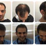 Пересадка волос в Новосибирске