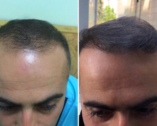 фото пересадки волос до и после