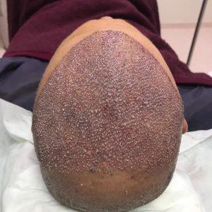 Пересадка волос в Москве