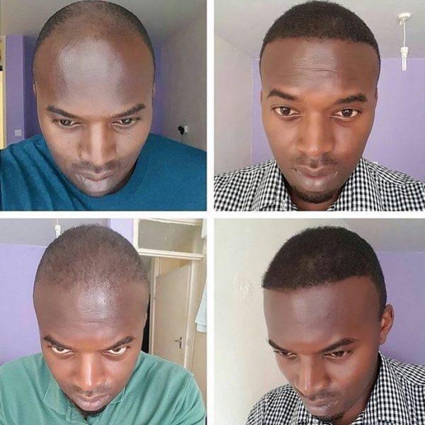 пересадка волос реальные фото до и после