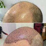 Пересадка волос с тела на голову