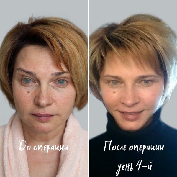 до и после липофилинга лица