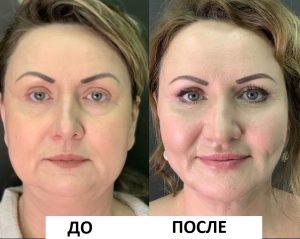 Липофилинг лица: фото до и после