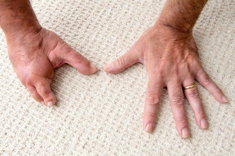 пересадка пальца с ноги на руку