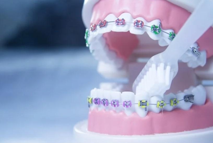 Ортодонтическое лечение синдрома Арскога-Скотта