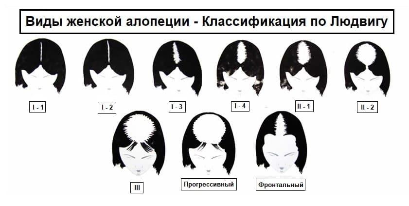 Андрогенетическая алопеция у женщин или выпадение волос по женскому типу