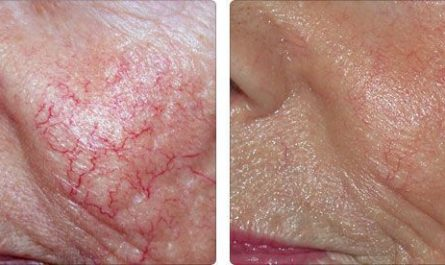 Коррекция сосудистых сеточек на коже